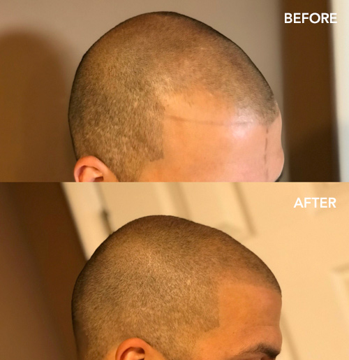 Graphite Cosmetic Tattooing Before and After